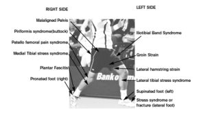 3'common'malalignment'injuries